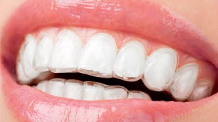 Hoe ziet een gezond gebit eruit?