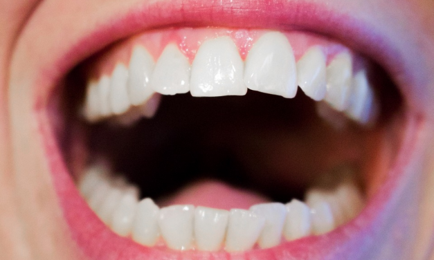 Wanneer ga je naar een mondhygiënist?